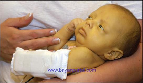 bebeklerde sarılık
